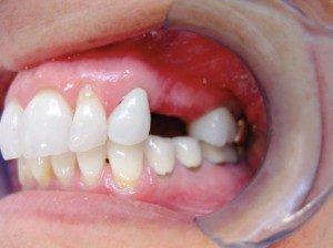 mini dental implants Lawrenceburg, IN